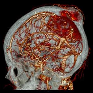 Aquilion PRIME 160 CT scan